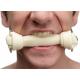 Brutus Mouthgag